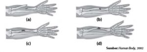 Beberapa jenis fraktura yaitu (a) fraktura terbuka (b) fraktura tertutup (c) remuk dan (d) retak