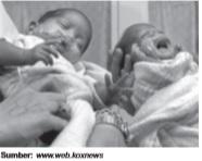 Pertambahan penduduk melalui kelahiran dapat meningkatkan permintaan.